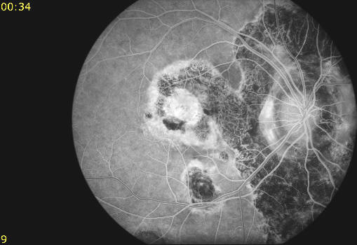 fundus photo f/a